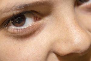 Mezoterapia – podpowiadamy co powinieneś o niej wiedzieć
